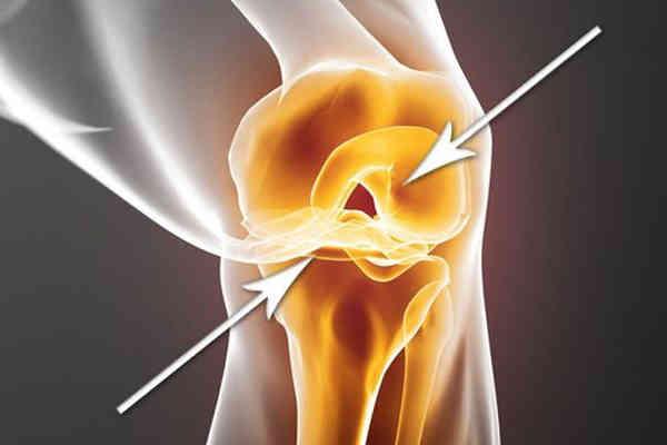 auxiliare de regenerare a cartilajelor)